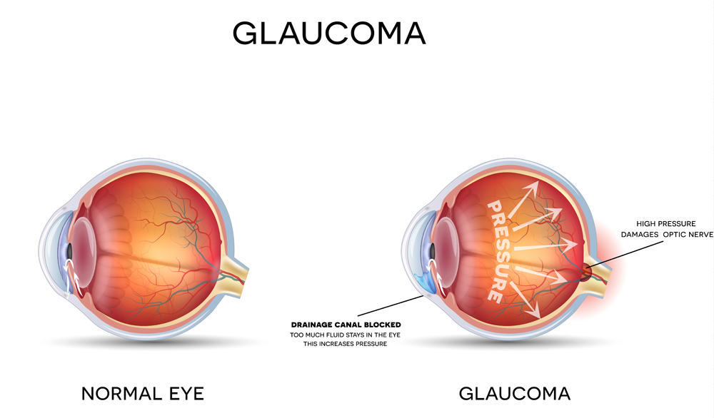 diagram of how glaucoma works